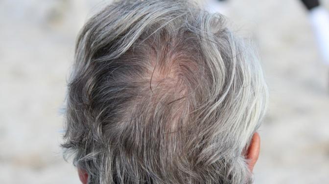 Warum werden unsere Haare im Alter grau?